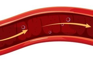 arteriosklerose verlauf